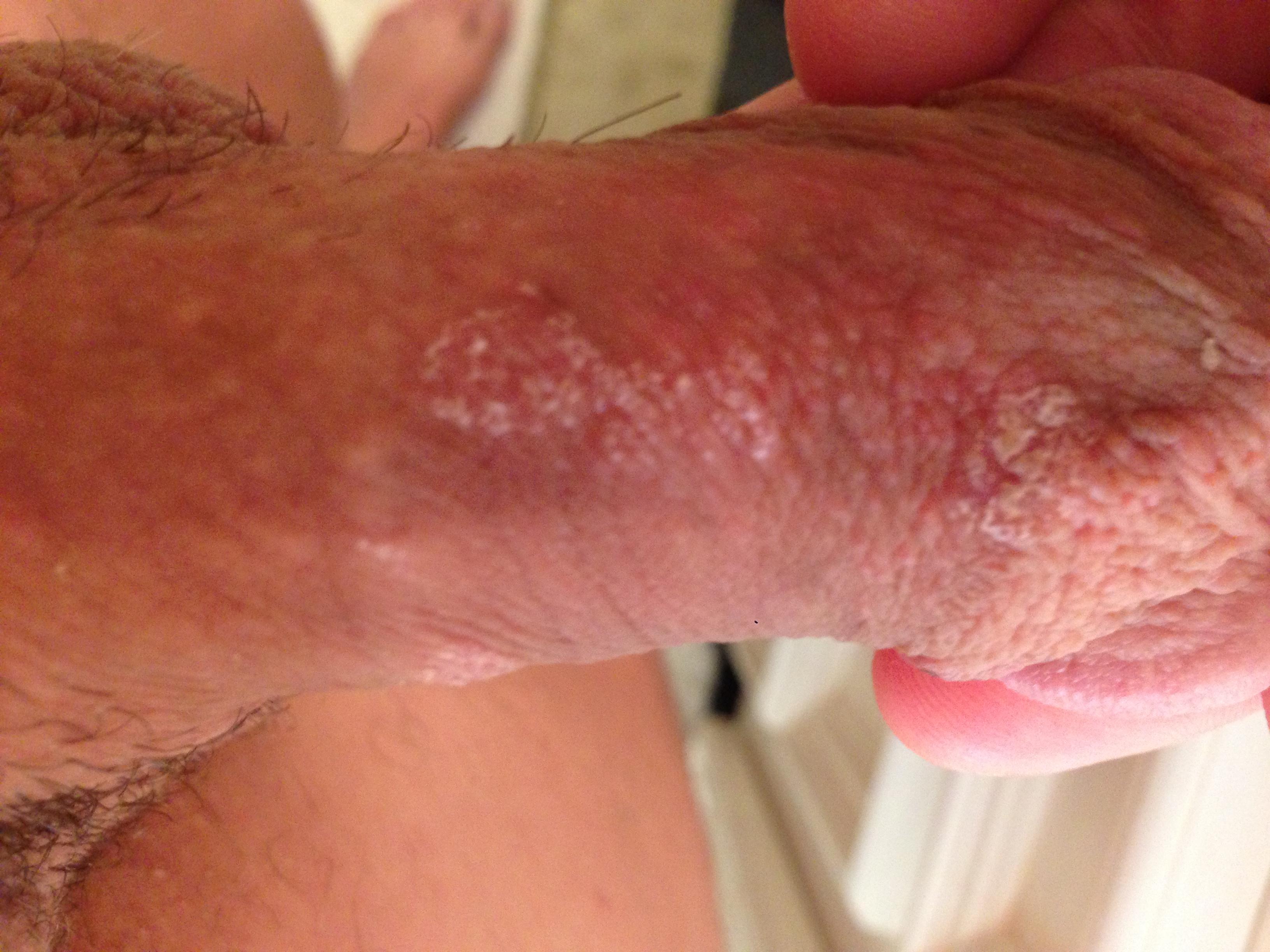 fordyce spots with Porn
