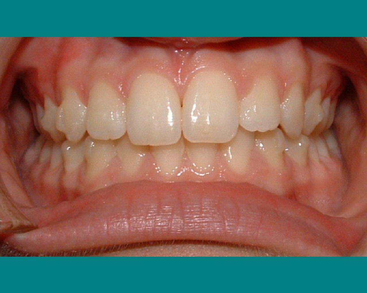 Invisalign clear braces