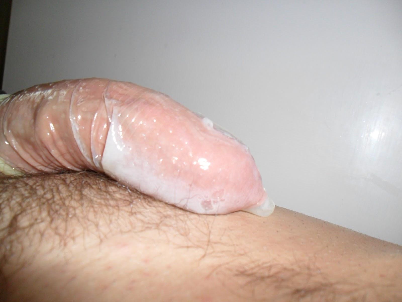 прозрачная жидкая сперма