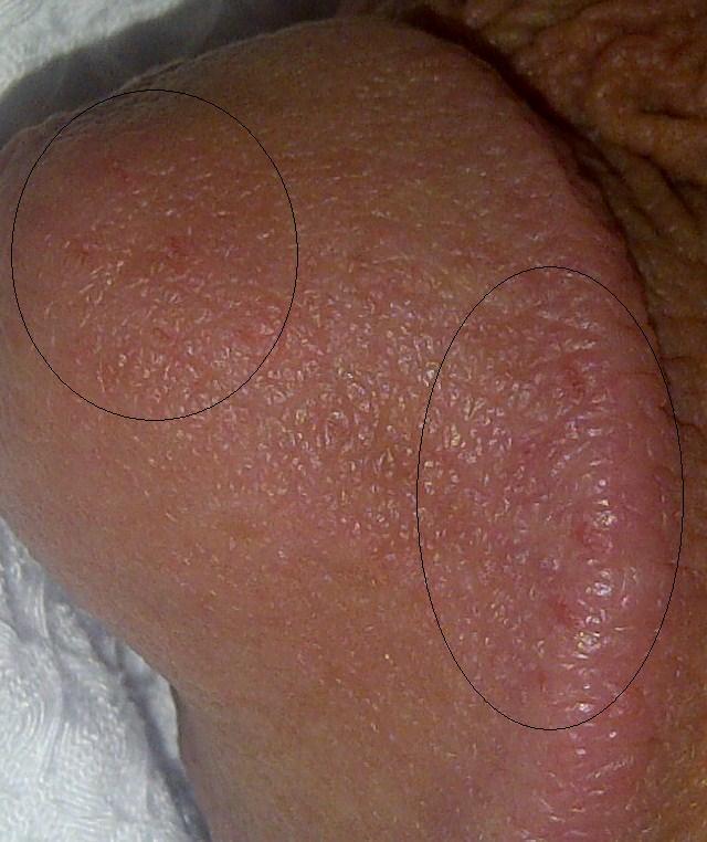 On cock pimple STD Symptoms